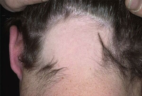 Alopecia Areata Condition