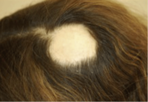 Alopecia Areata Symptoms